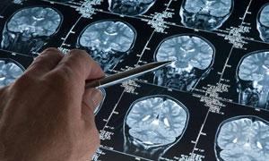 Beyin taraması da kanıtladı!