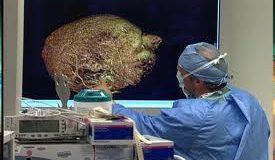 Beyin ameliyatında üç boyutlu yöntem
