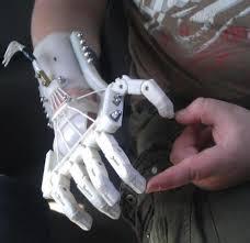 3D printer ile protez