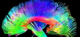Sanatçıların beyinleri 'yapısal olarak farklı'