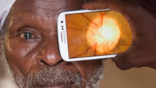peek-retina-akilli-telefon-goz-muayenesi