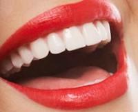 İnternet sitelerinde satışa sunulan diş beyazlatma ürünleri zarar verebiliyor.