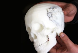 3 boyutlu yazıcıyla tüm kemikleri ürettiler